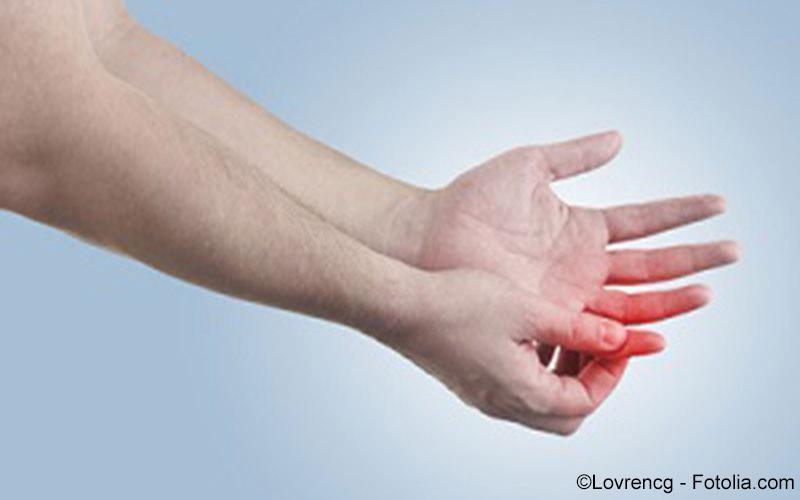 Arthritis, rheumatoide